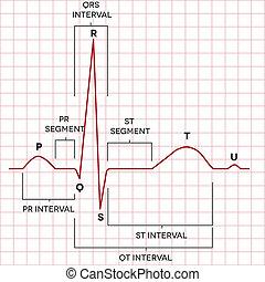 rythme coeur, normal, humain, sinus, électrocardiogramme