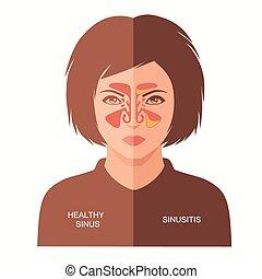 sinusite, maladie