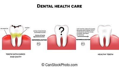 soin dentaire, santé