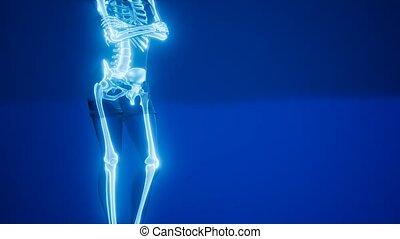 squelette, radiographie, balayage médical, humain