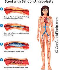 stent, angioplastie, procédure