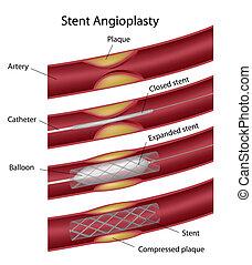 stent, eps10, angioplastie