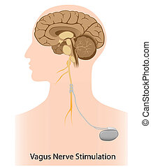 stimulation, nerf, vagus, thérapie