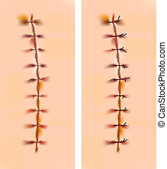 sutures., cicatrices, agrafes