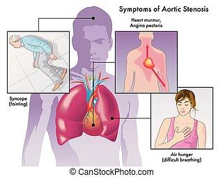 symptômes, sténose, aortique