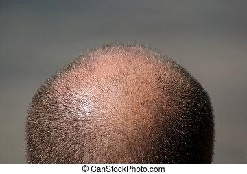 tête, chauve, homme