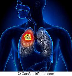 tumeur, poumon, -, détail, cancer
