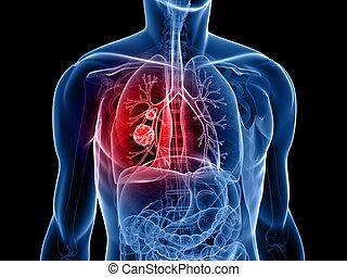 tumeur, poumon