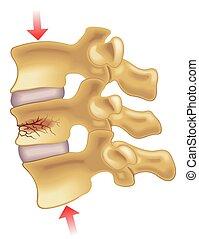 vertébral, fracture, compression