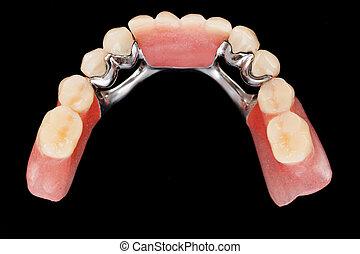vew, supérieur, squelettique, dentaire, -, prothèse