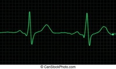 vrai, cardiogramme, formulaire, boucle, alpha